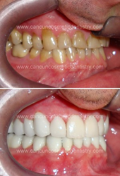 Mexico Dentist. Dental work in Mexico. Cancun Dental