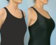 Breast Enhancement Before and After Photos