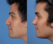 Dr. Rod J. Rohrich Underscores Importance of Upper Lateral Cartilage in Rhinoplasty