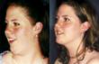 plastic, surgery, surgeon, faceilift, facial, rejuvenation