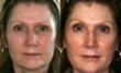 plastic, surgery, surgeon, facelift, facial, rejuvenation