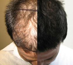 Affordable Hair Transplant