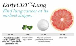 EarlyCDT-Lung Test