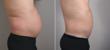 liposuction for men, New Jersey