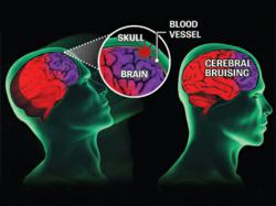 Illustration depicting the areas of the brain affected by a concussion.