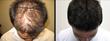 Dr. Brett Bolton Surpasses 400 Hair Transplant Patient Recommendations