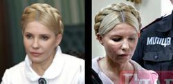 Yulia Tymoshenko's Health Rapidly Deteriorating