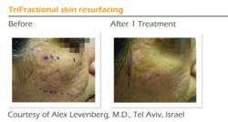 Trifractional Acne scars treatment
