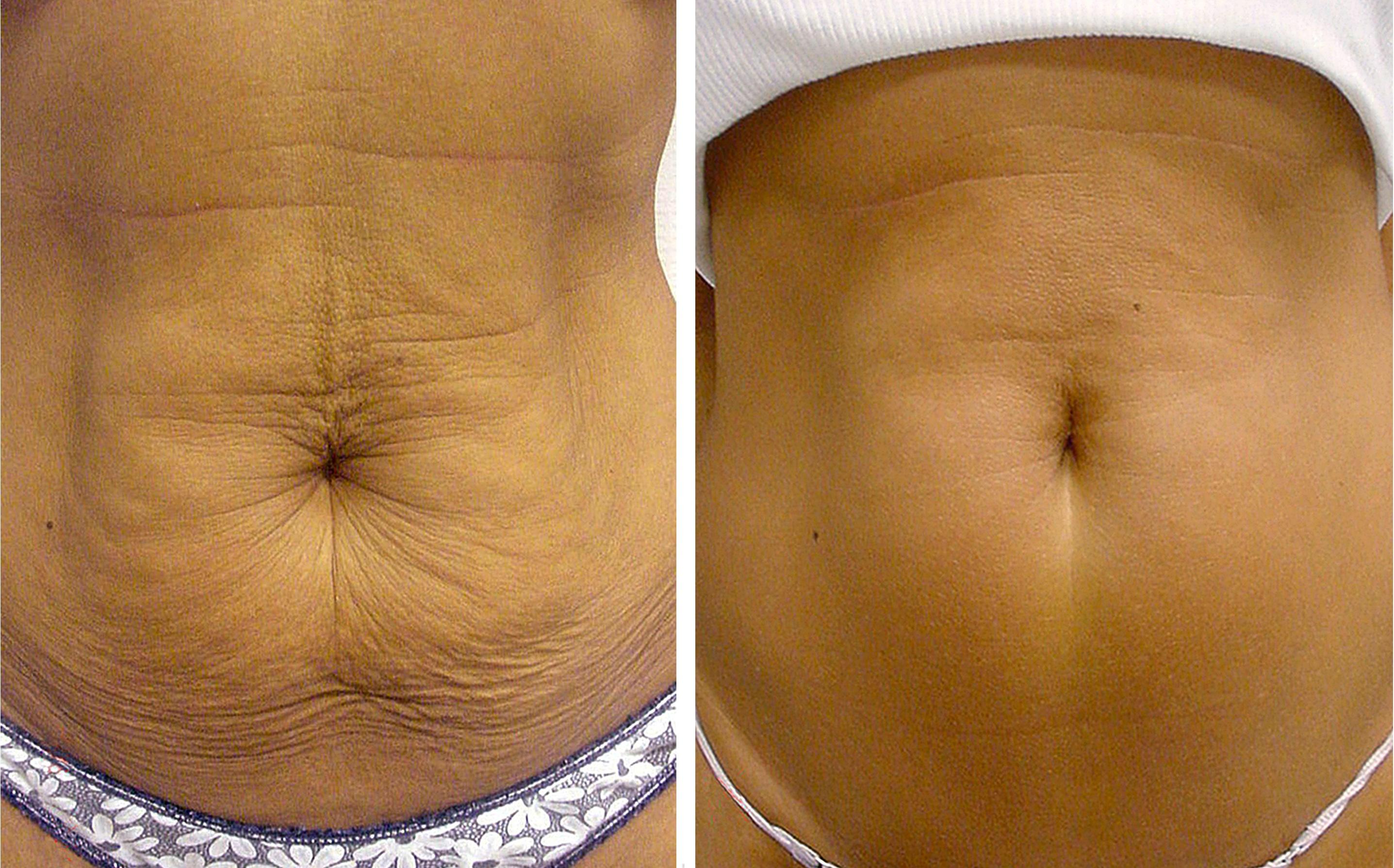 убрать жир на животе массажем