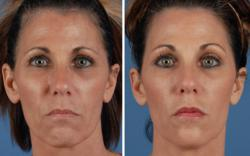 Dr. Rohrich treated this patient using only fillers and Botox. No surgery.