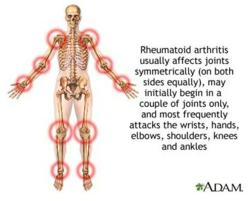 Rheumatoid Arthritis usually affects joints symmetrically, may initially begin in a couple of joints only, and most frequently attacks the wrists, hands, elbows, shoulders, knees and ankles