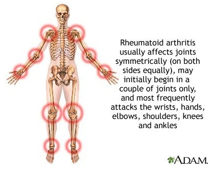 why does arimidex cause joint pain
