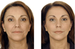 Non Surgical Face lift before & after