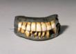 Dentures owned and worn by George Washington