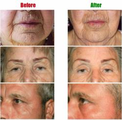 A Facial with the Beau Visage Facelift Without Surgery System