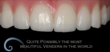 Atlanta Dental Spa Porcelain Veneers