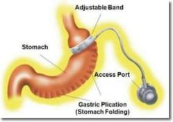 iBand gastric plication bariatric surrgery texas