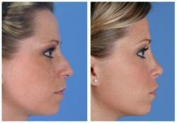 Rod Rohrich secondary rhinoplasty