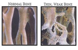 Health and Osteoporotic Bones