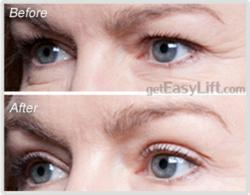 EasyLift Eyelid Lift Before and After #1