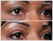 EasyLift Eyelid Lift Before and After #2