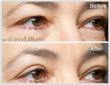 EasyLift Eyelid Lift Before and After #3