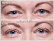 EasyLift Eyelid Lift Before and After #4