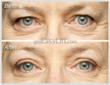 EasyLift Eyelid Lift Before and After #5