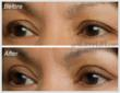 EasyLift Eyelid Lift Before and After #6
