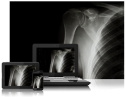 SeeMyRadiology.com Evolves into the De Facto HIE Platform for Imaging