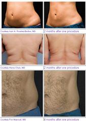CoolSculpting Treatment Results