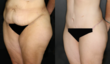 Liposuction, Tummy, Tuck, annapolis, MD, Ormsby, plastic, surgeon
