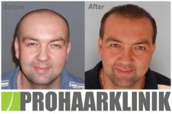 www.prohaarklinik.at