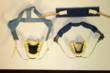 Upper and lower dental models with retainers showing removable headgear attached to them