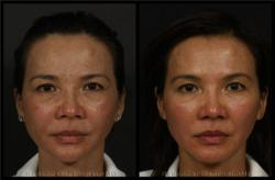 Before and After Ultherapy photos Los Angeles