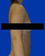 Breast Augmentation Maryland