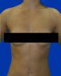 Breast Augementation Maryland
