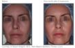 TriPollar treatment results
