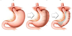 gastric pleat or plication progression