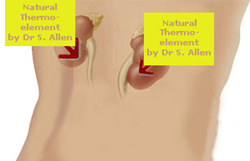 Thermoelement by Dr. Allen close to kidneys