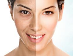 photo facial IPL therapy