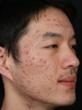 Acne Patient before Isolaz