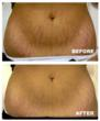 stretch Marks befor and after