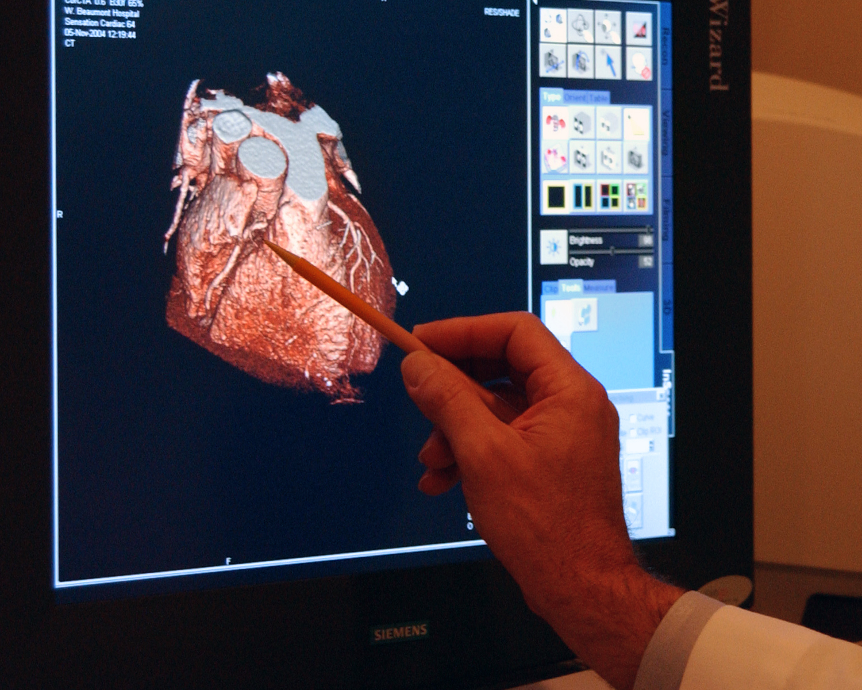 Tomographic study of heart