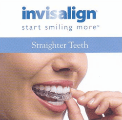 The Valentine's Day Sale:  Miami Invisalign Procedures with Digital Precision