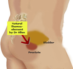 New Thermobalancing Therapy treats prostate enlargement effectively