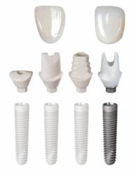 Inclusive Dental Implant Tooth Replacement Solution