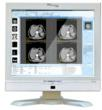 Cybernet Announces Latest All-in-One Medical Computer, the CyberMed N19