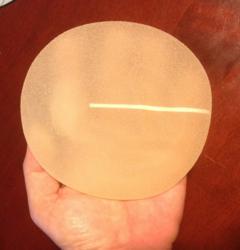 Sientra Breast Implant