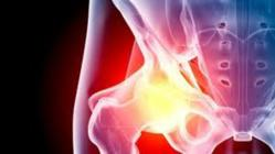 DePuy Hip Replacement severe adverse events
